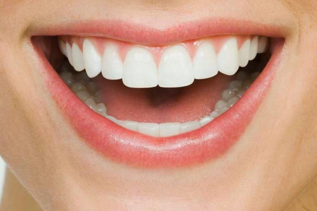 White Cosmetic Healthy Teeth | Thousand Oaks Dentist | Dr. Sid Solomon DDS | Aesthetic Dental Group