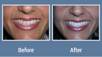 Before After Cosmetic Dentistry Teeth