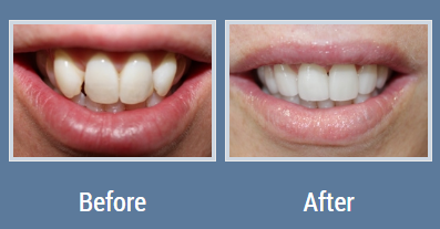 Before After Cosmetic Dentistry Teeth Thousand Oaks Dentist